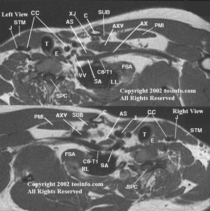 3D Brachial Plexus MRI/MRA/MRV Technique